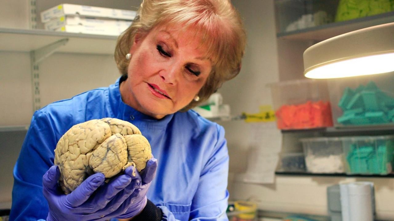 The Truth About Dementia